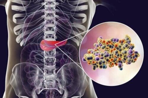 Insulin i maven har en betydning for, om kunstigt sødemiddel kan bekæmpe fedme