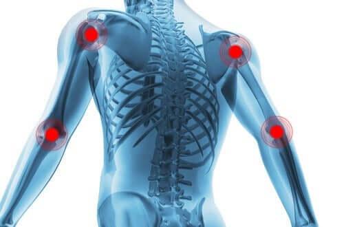 Synoviale led illustreres med røde pletter