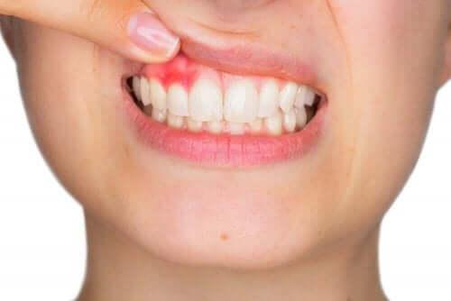 Kvinde med blødende tandkød
