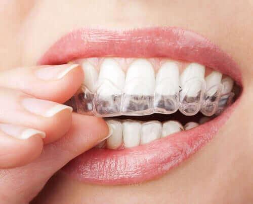 Kvinde anvender gennemsigtige tandskinner