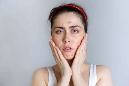 Kvinde oplever akne under menstruation