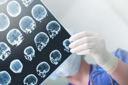 Et radiografi af et kranie holdes af behandskede hænder