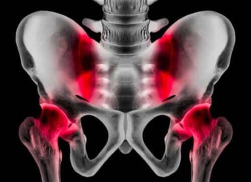 Sportsbrok: Årsager, symptomer og behandling