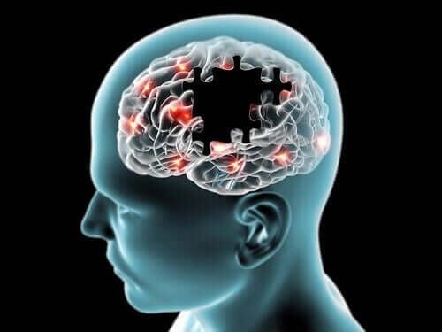 Illustration af undersøgelse af, om sukker forbderer mental præstation