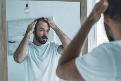 Mand med alopecia