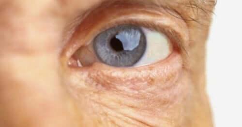 Øje illustrerer aldersrelateret makuladegeneration