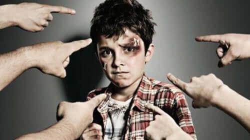 Dreng med mærker i hovedet og fingre pegende mod sig illustrerer børnemobning