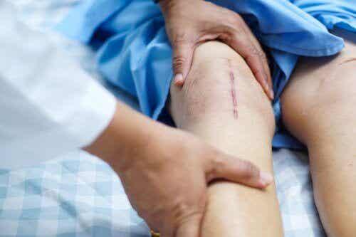 Heling efter en knætransplantation