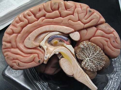 Illustration af hjerne med subarachnoid og subdural blødninger