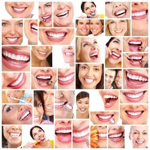 Billeder af hvide tænder som resultat af at bruge mundskyl