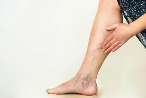 Person har blodkarsprængninger i benene
