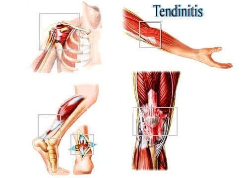 Tendinitis er en irritation i senen