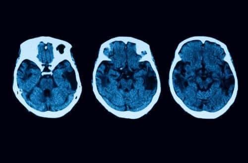 Diagnosticering og behandling af posterior kortikal atrofi