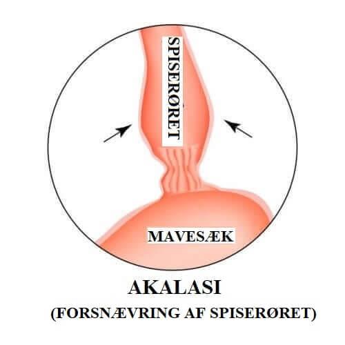 Akalasi illustreres med tegning af mavesæk og spiserør