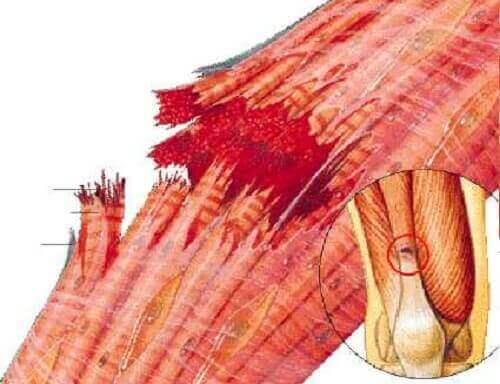 Der er mange brudte fibre i en forstrukket muskel
