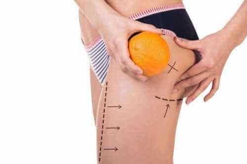 Tre menuer til forebyggelse af cellulitis
