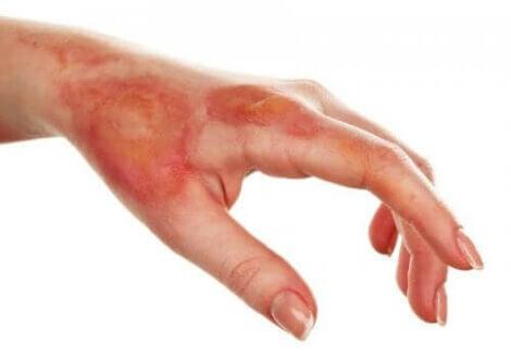 En forbrænding kan klassificeres i forskellige grader, afhængigt af det hudlag, den når