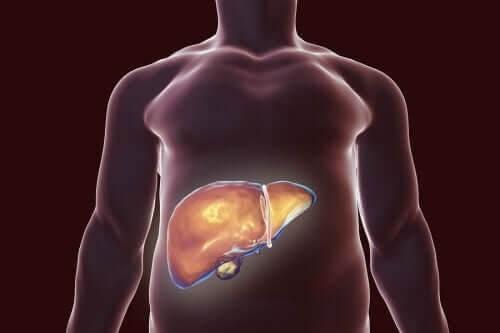 Sund galdeblære: Tips til den rette kost