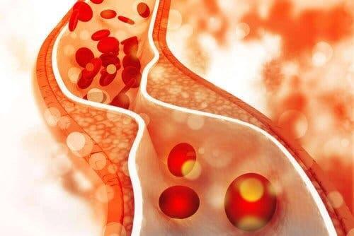 Illustration af kolesterol i blodbane