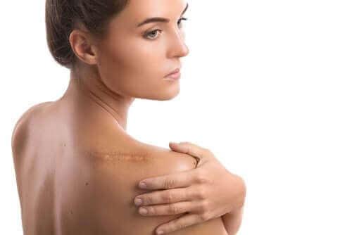 Kvinde med ar på skulder fra rotatorcuff skade