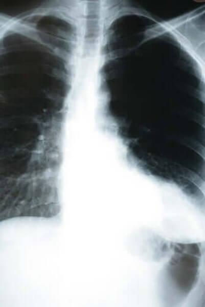 Røntgenbilleder kan være med til at opdage kold lungebetændelse