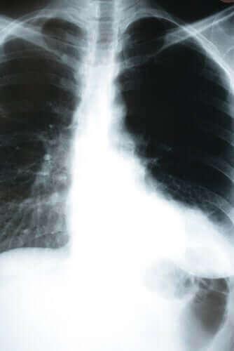 Hvordan lungebetændelse påvirker kroppen