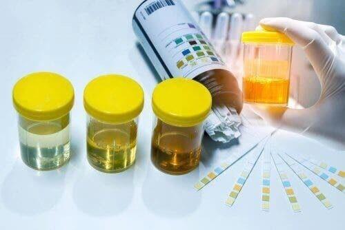 Urinprøver, der er klar til at blive testet