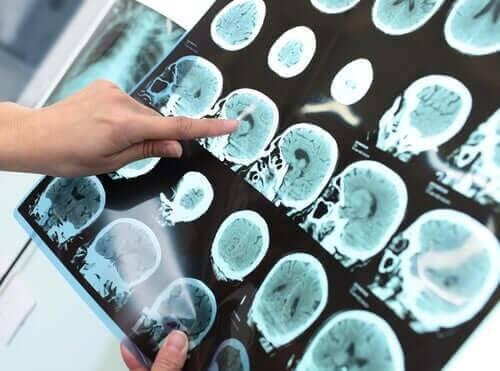 Røntgen af hjernen