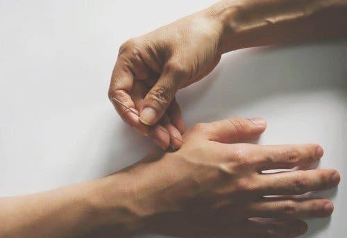 Akupunktur i hånd til at behandler ledsmerter