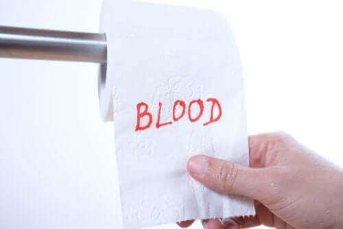 Blod i afføringen: Hvorfor sker det?