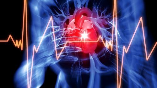 Hjerte illustrerer for meget væske i hjertesækken