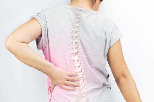 Kvinde med skæv ryg