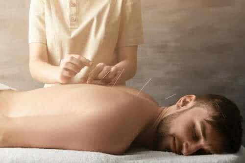 Akupunktur til at behandle ledsmerter