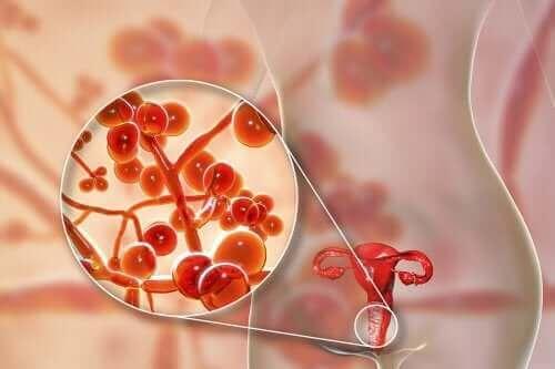 Mycoplasma genitalium: Årsager, symptomer og behandling