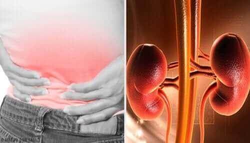 Nyreabscesser er akkumulering af pus omkring den ene eller begge nyrer