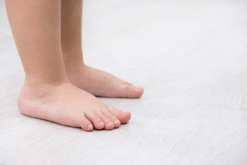 Platfod: Symptomer og behandling