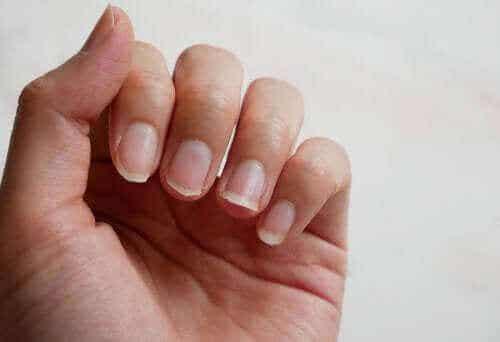 Fire naturlige ingredienser til behandling af skrøbelige negle