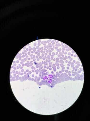 Agranulocytose: Symptomer og behandling