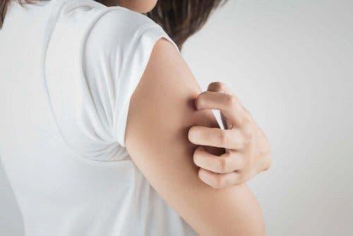 Allopurinol kan give udslæt