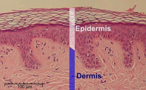 Epidermis og dermis