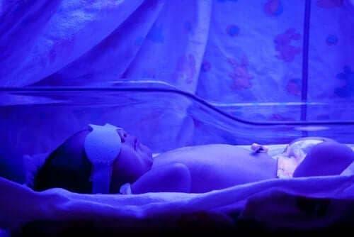 Gulsot hos babyer: Dette bør du vide
