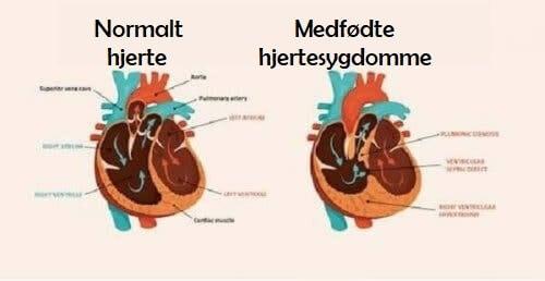 Illustration af medfødte hjertesygdomme