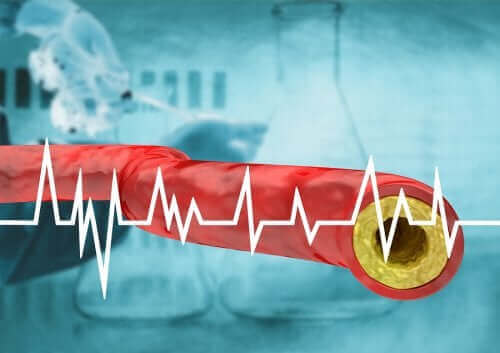 Du kan holde højt kolesteroltal væk gennem din kost