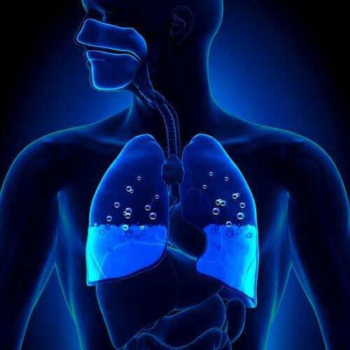 Lungeødem: Symptomer og årsager