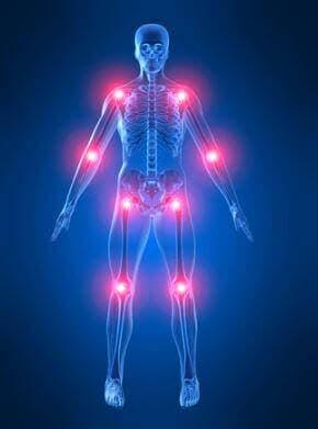 Illustration af led og knogler i kroppen viser pagets sygdom