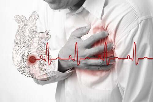Akut hjerteinfarkt eller hjerteanfald er en alvorlig tilstand, der opstår som et resultat af en blodproppes hindring af en koronararterie
