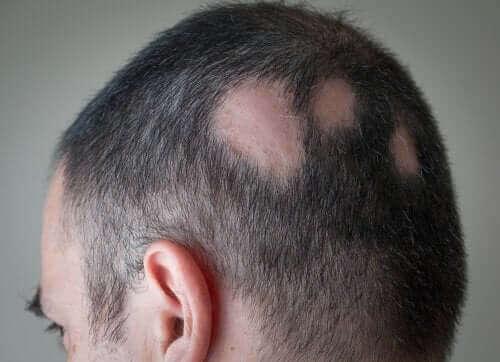Mand med skaldede pletter i hovedbunden