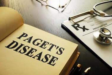 Pagets sygdom - Alt, hvad du bør vide