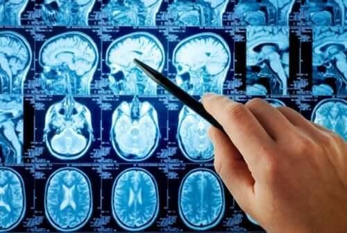 Røntgen af hjerne