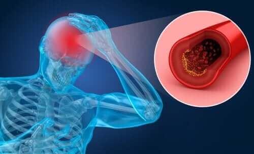 Risikofaktorer og symptomer på slagtilfælde